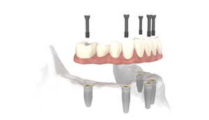 Perfect Smile Implant Bridge implant level