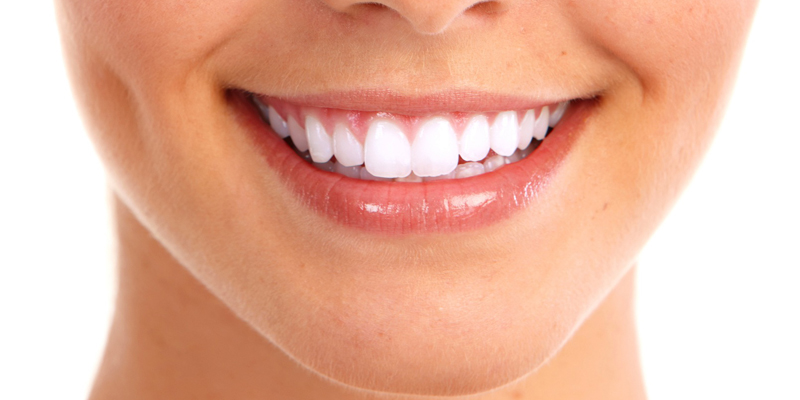 Aesthetic Dentistry at PERFECT SMILE Dental Clinic