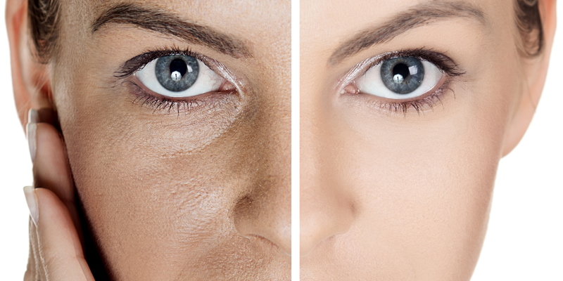 dark under eye treatment